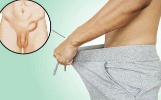 Паховая грыжа у мужчин: операция и лечение без операции