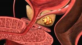 Калькулезный простатит: как лечить кальцинаты (камни) в простате