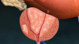 Рак предстательной железы первой степени: симптомы