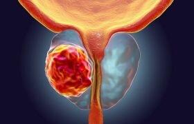 Рак предстательной железы второй степени: симптомы и прогноз