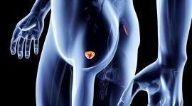 В России чаще стали выявлять рак простаты