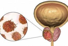 Прорыв в лечении рака простаты