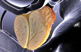Фиброз предстательной железы (склероз простаты): что такое