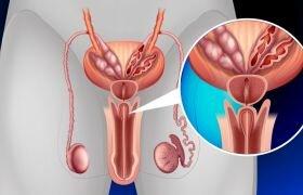 Размеры и объемы предстательной железы при аденоме