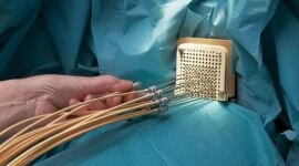 Брахитерапия рака предстательной железы
