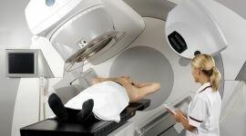 Лучевая терапия при раке предстательной железы: облучение простаты
