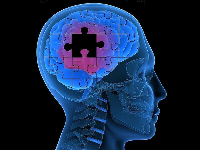 Расстройство мозговой деятельности