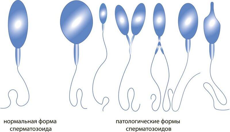 Причины плохой спермограммы
