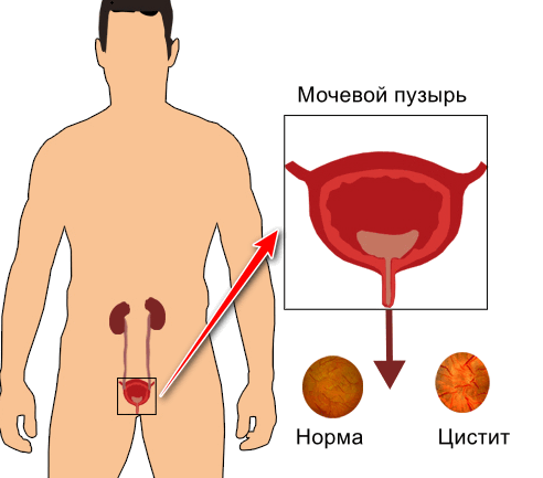 Цистит у мужчин что это за болезнь