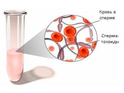 Цвет спермы при гемоспермии