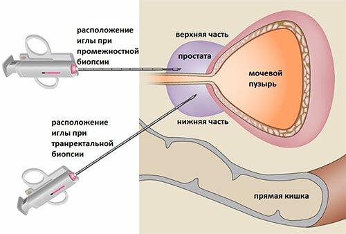Классификация рака простаты по системе ТНМ и биопсия