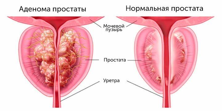 МРТ при аденоме простаты