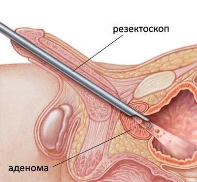 Плазменная абляция опухоли