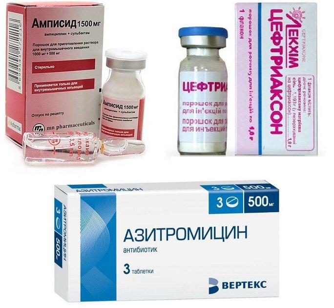 Какие антибиотики используются при простатите хронический простатит 3 б