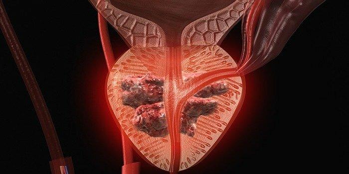 Аденокарцинома предстательной железы