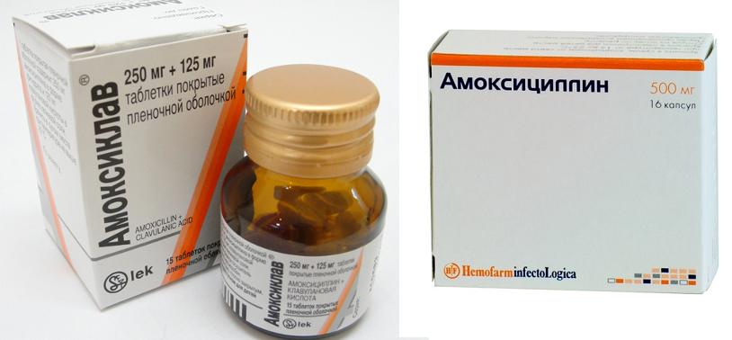 Антибиотики при воспалении простаты