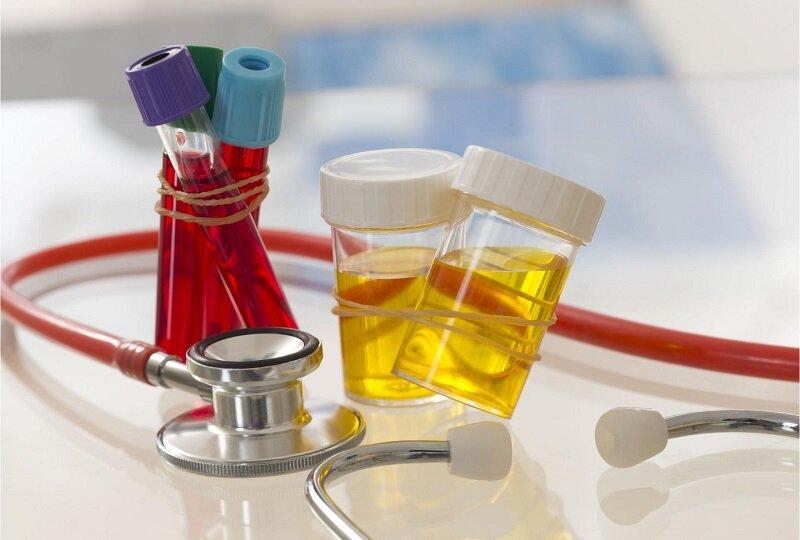 Диагностика небактериального простатита