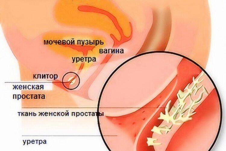 Женская простата фото