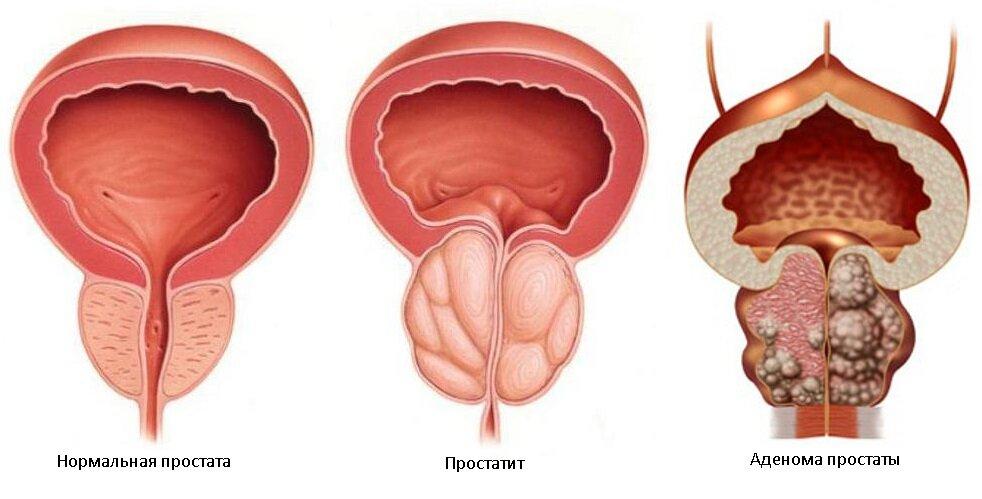 Разница между простатитом и аденомой простаты может ли быть вздутие живота при простатите