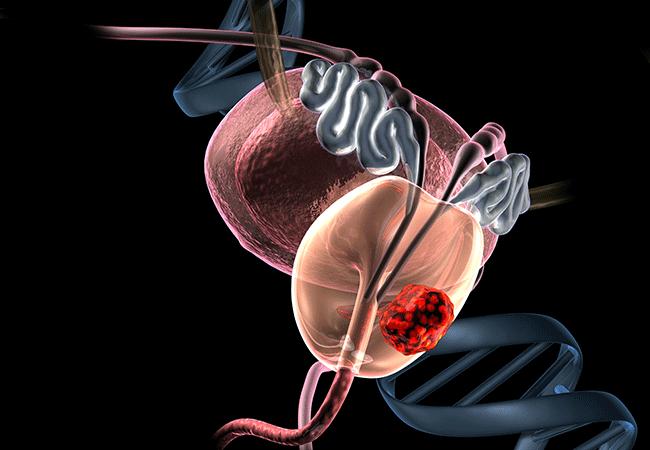 Рак простаты и секс