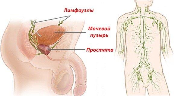 Симптомы рака простаты 3 степени