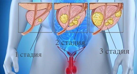 Стадии развития аденомы