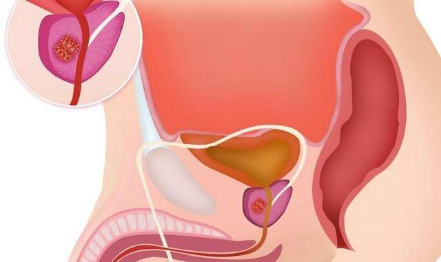 Показания к применению Простата Форте