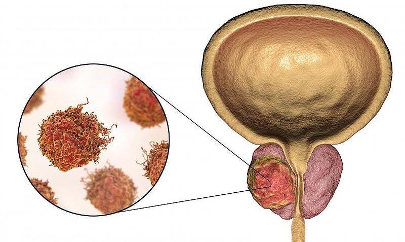 Прорыв в лечении рака простаты фото